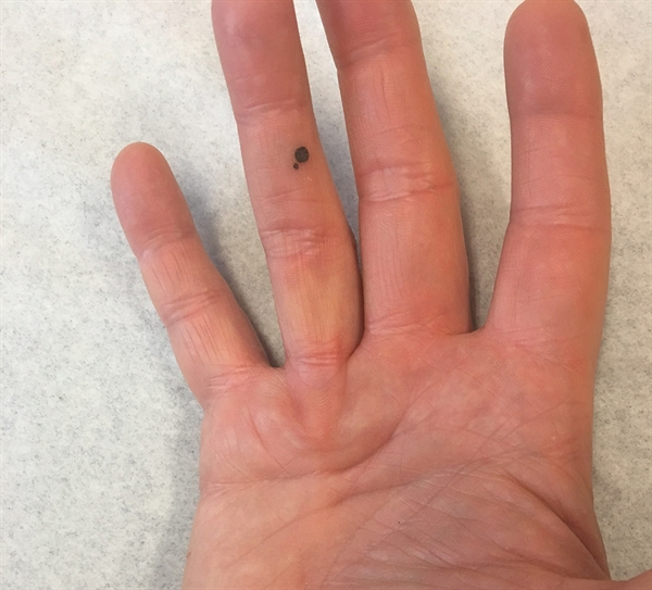 A 52-year-old man diagnosed with Dupuytren contracture notices increasing contracture to his right ring finger. This image shows a large pretendinous cord in the palm of his hand in line with his ring finger.