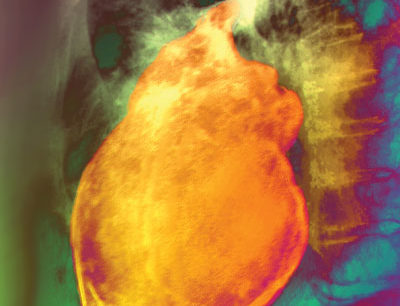 Pain caused by pericarditis (shown here) is usually described as sharp and stabbing.