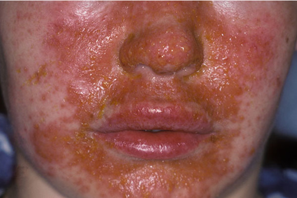 Impetigo, a skin infection caused by S. aureus or group A beta-hemolytic streptococcal bacteria, on the face. Photo credit: ISM / Phototake