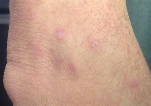 Derm Dx: A factory worker with an itchy rash on the wrists