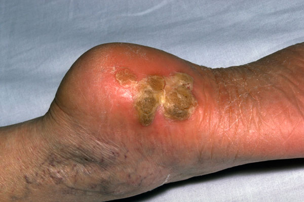 A plantar wart is a painful growth in the skin on the sole of the foot. Caused by the common wart virus, it occurs most often at points of pressure, as on the heel. There is a soft core surrounded by a firm, callus-like ring. Many tiny, black spots on the surface are bits of clotted blood in the wart. Photo credit: Mediscan