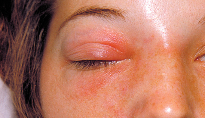 An infection? leads to blindness