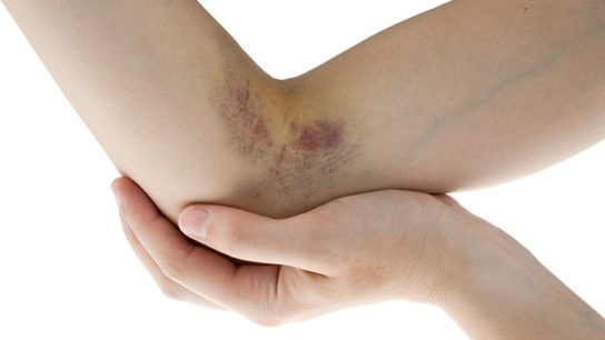 A patient's bruises prompt closer attention