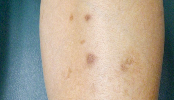 Small brown spots on the lower shins - Clinical Advisor
