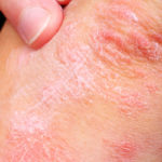 Psoriatic disease often undertreated, not treated