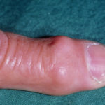 A ring-like swelling towards the fingertip, common in individuals with osteoarthritis, which is formed by a lump of cartilage-covered bone around the terminal joint. Osteoarthritis most commonly affects the elderly.