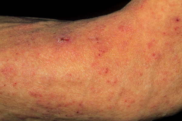 Sarcoptes scabiei mites caused the itchy small scaly swellings pictured here. The female mites burrow into the skin & lay eggs. Newly hatched mites are transmitted by physical contact. The mites' burrows are usually found between the fingers & on the wrists & genitals, but also appear on the limbs & torso.