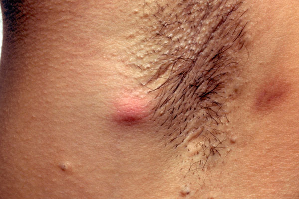 In early stages hidradenitis suppurativa may start as a solitary abscess resembling a carbuncle, lymphadenitis or an infected epidermoid cyst. Clinicians should suspect hidradenitis suppurativa in any patient that presents with abscess-like swelling in apocrine gland-bearing skin.