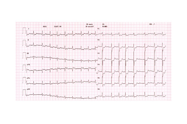 This electrocardiogram trace shows the heartbeat of an 80-year-old man experiencing AF. Abnormalities are expressed by changes in the T wave after the main heartbeat peak.