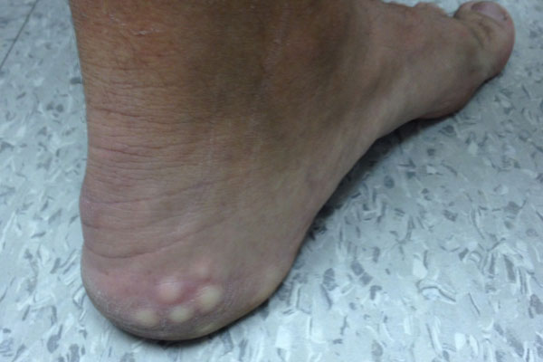 Derm Dx: White lumps on the heel when standing - Clinical