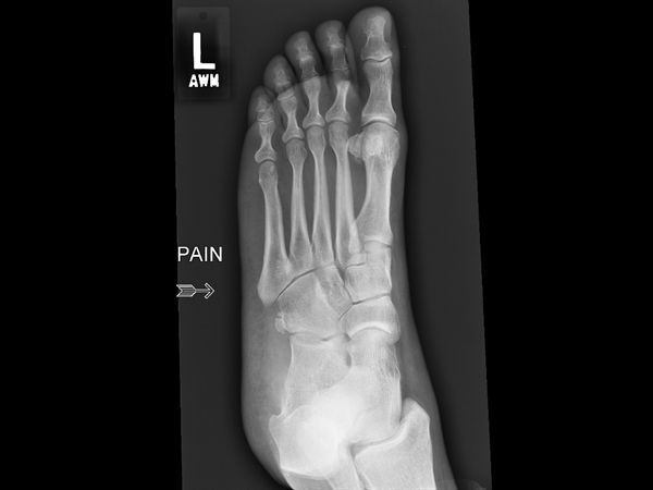 Oblique X-ray of the foot.