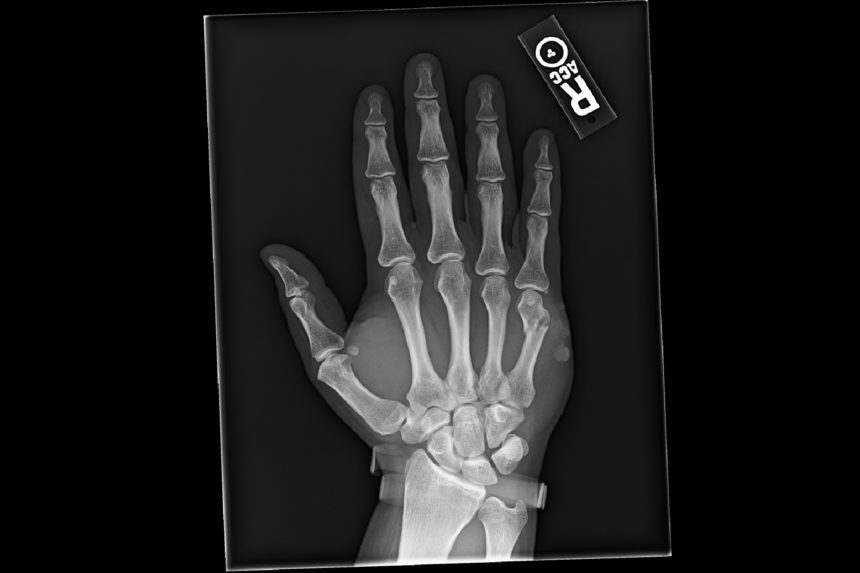 Anteroposterior radiograph of the right hand.