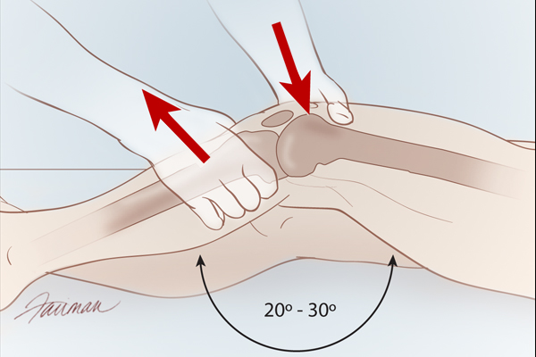With the patient lying in the supine position, flex the knee 20° to 30° while the heel rests on the end of the exam table. Grasp the femur with the nondominant hand to prevent movement of the upper leg. Then, grasp the lower leg at the proximal tibia and apply a forward tug. This movement should produce a firm endpoint. If the endpoint is not firm or there is increased anterior translation of the tibia, the Lachman test is positive.