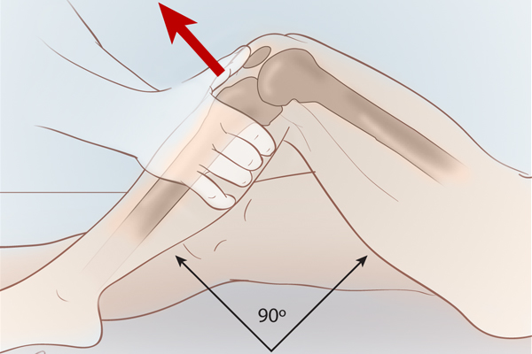 With the patient lying the supine position, place the knee in 90° of flexion without rotation. Place both hands on the proximal tibia, and pull the upper part of the calf forward. An anterior drawer test is positive when the tibia moves anteriorly without an abrupt, hard endpoint.
