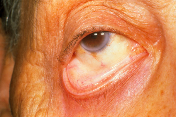 Aplastic anemia is a rare and serious form of anemia caused by damage to bone marrow, in which the body does not produce enough new blood cells, predisposing the patient to higher risk for uncontrolled bleeding and infections. This photo shows the pale inner eyelid of a patient with aplastic anemia. Causes include long-term or serious illnesses, such as kidney disease, cancer, diabetes, rheumatoid arthritis, HIV/AIDS, inflammatory bowel disease, liver disease, heart failure and thyroid disease.