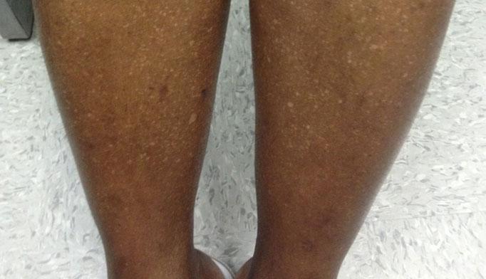 Derm Dx White Spots On The Legs Clinical Advisor