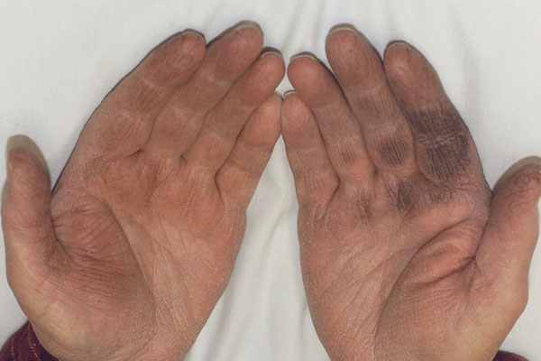 Derm Dx: Black discoloration of the hands - Clinical Advisor