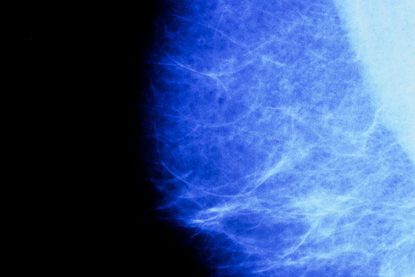 As a woman approaches menopause the glandular component of the breast decreases and is replaced by adipose tissue, a fibrous connective tissue packed with fat cells. Here, fibrous tissue appears as the fine white network across the breast.