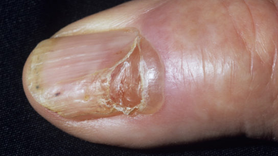 Typically painless, treatment involves draining and removing the cyst.
