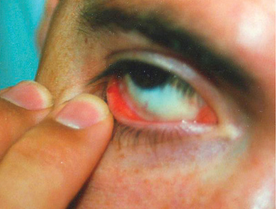 figure 1: Conjunctival hemorrhage was among the cutaneous signs discovered.