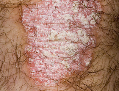 The patient had a chronic condition that featured thickened, scaly patches of skin.