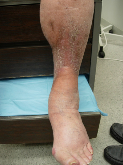 Painful tightening of the skin on the legs