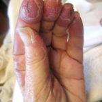 Tender, edematous, red plaques on a woman's hands and feet