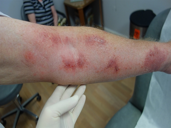An extremely itchy rash on the arms following yardwork - Clinical