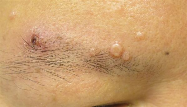 May 2015 Dermatology Clinic