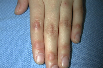 Pink papules on the fingers - Page 3 of 3 - Clinical Advisor