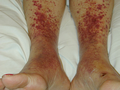 Red rashes on the lower legs - Page 2 of 3 - Clinical Advisor