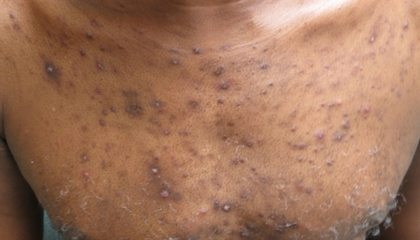 Erythematous Papules On Face And Torso Clinical Advisor