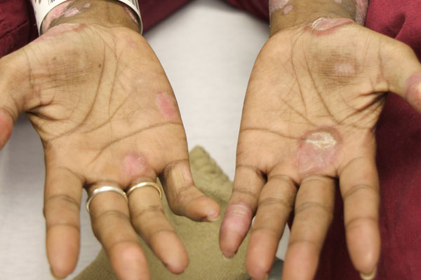 Erythematous scaling plaques — some with surrounding hyperpigmentation — in a woman with systemic lupus erythematosus.