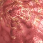 Clinical guidelines developed for Eosinophilic Esophagitis