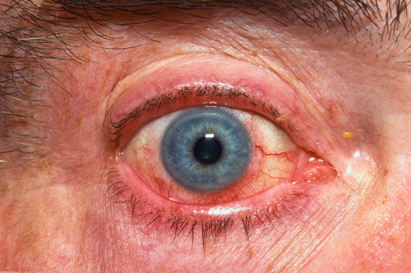 "Acute conjunctivitis (""pink eye"") with marginal corneal inflammation"