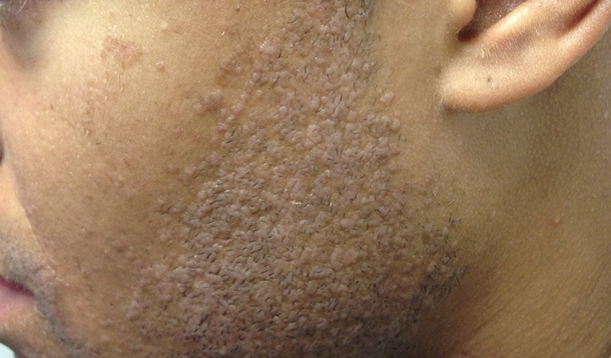 Derm Dx Pink Flat Papules On The Face Clinical Advisor