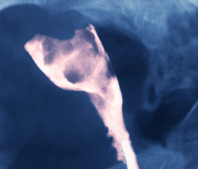 X-ray of a uterus showing an adenocarcinoma (pink).