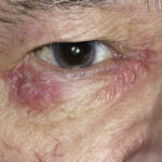 Atopic dermatitis (eczema) may result from allergic reaction to some materials or drugs.