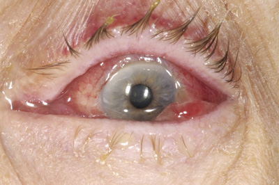 Bacterial conjunctivitis is an inflammation of the mucus membrane covering the front of the eye.