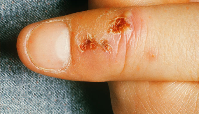 Herpetic whitlow is an intensely painful infection of the hand involving 1 or more fingers that typically affects the terminal phalanx. HSV-1 causes approximately 60% of cases, whereas HSV-2 accounts for the remaining 40%.