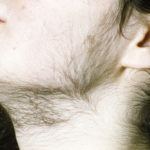 Treatment options for women with facial hair