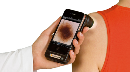 Smartphone apps screen for melanoma