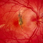Appropriate eye care lacking for diabetes patients