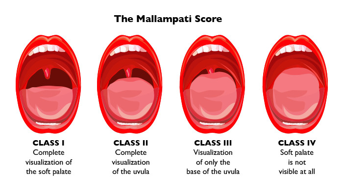 Understanding The Mallampati Score Clinical Advisor