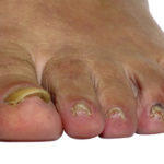 Nail involvement is a strong predictor of future psoriatic arthritis
