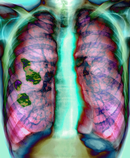 Hyperinflated lungs consistent with COPD caused by emphysema or bronchitis