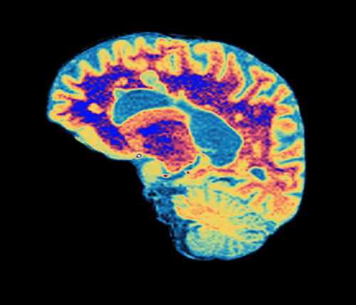 In MS, the myelin sheaths around the brain's axon nerve fibers (purple) are destroyed.