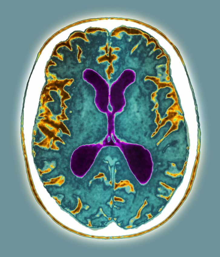 Alzheimer's disease has caused atrophy (brown areas) in both halves of this patient's brain