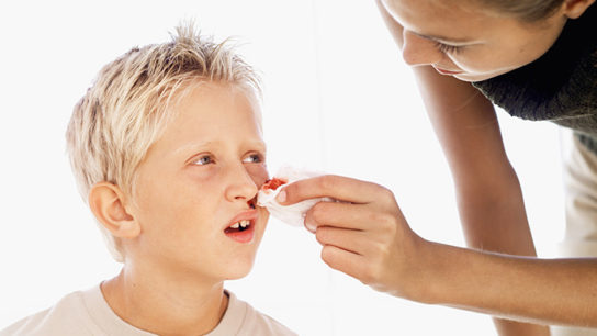 Cold comfort for recurrent nosebleeds