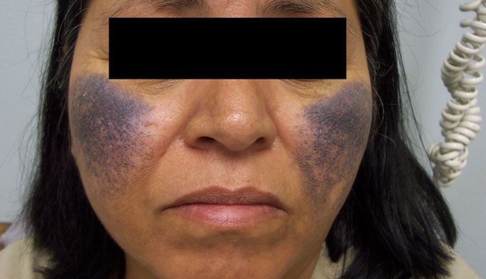 Derm Dx: Bluish-black discoloration of the face - Clinical ...